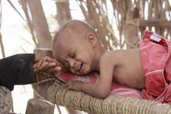 افزایش شمار بچه ها یمنی مبتلا به سرطان در نتیجه جنگ و محاصره